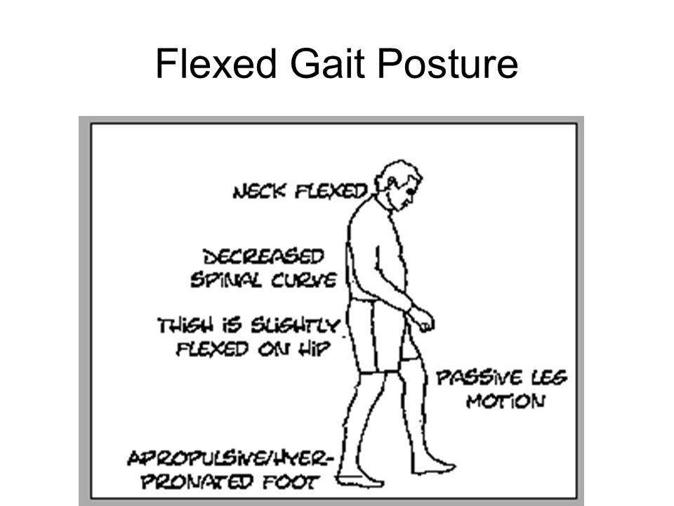Flexed Gait Posture