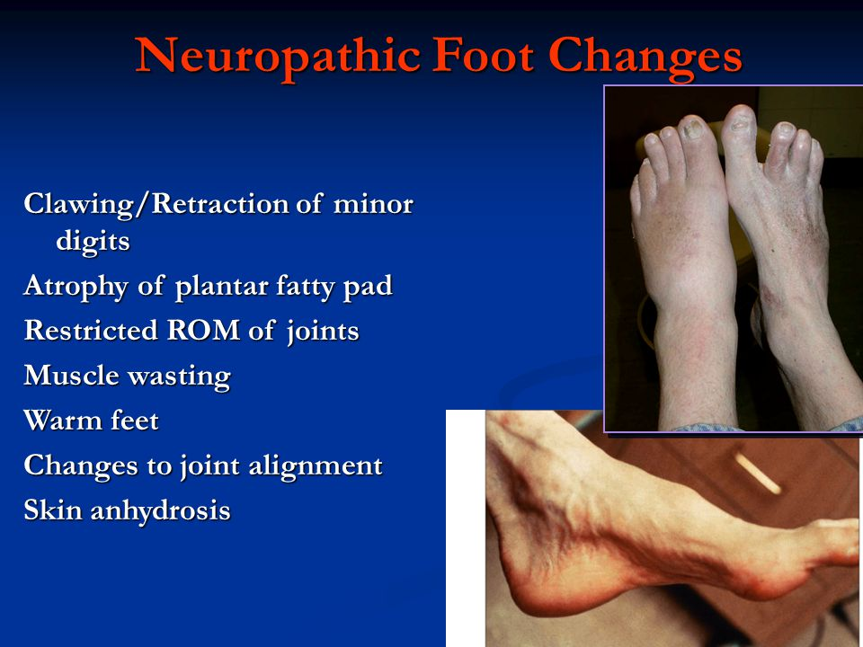 Neuropathic Foot Changes Clawing/Retraction of minor digits Atrophy of plantar fatty pad Restricted ROM of joints Muscle wasting Warm feet Changes to