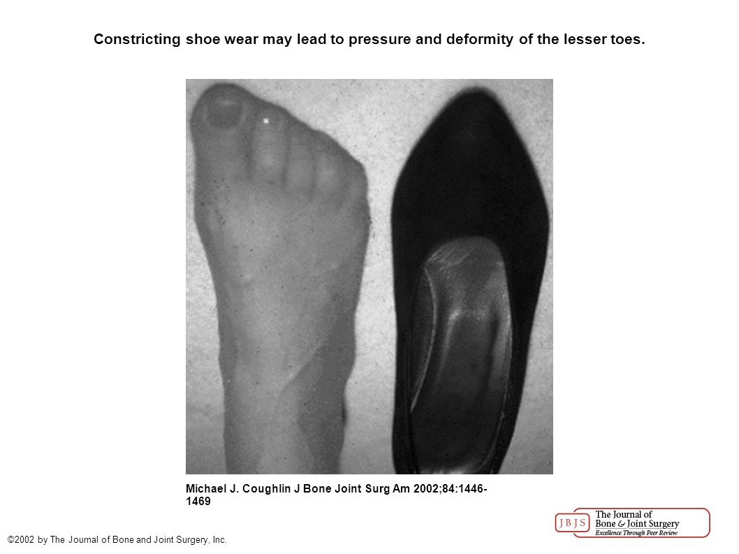 Constricting shoe wear may lead to pressure and deformity of the lesser toes.