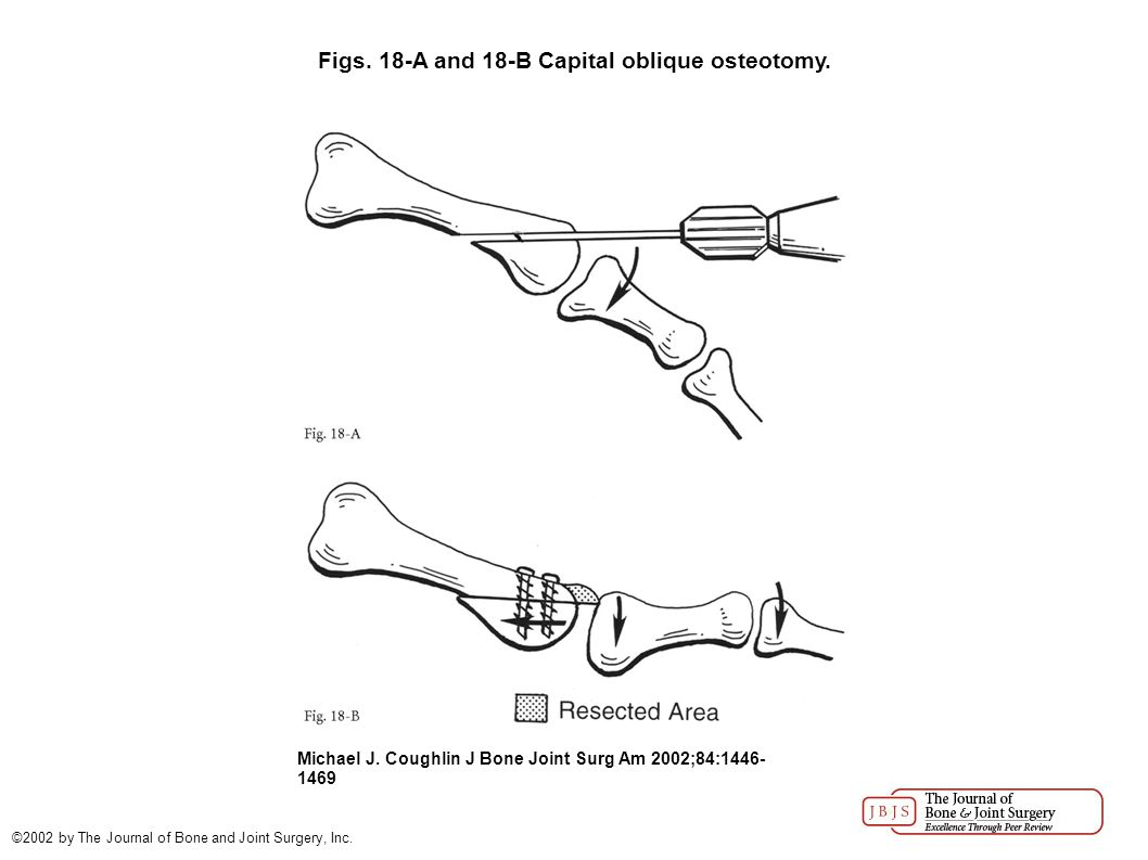 Figs. 18-A and 18-B Capital oblique osteotomy. Michael J.