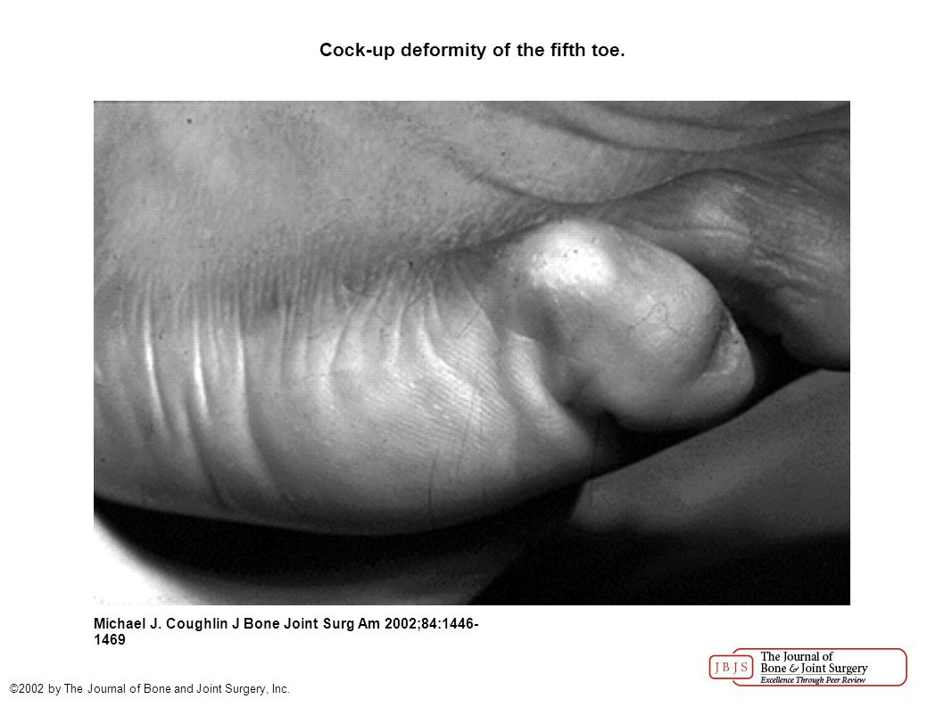 Cock-up deformity of the fifth toe. Michael J.