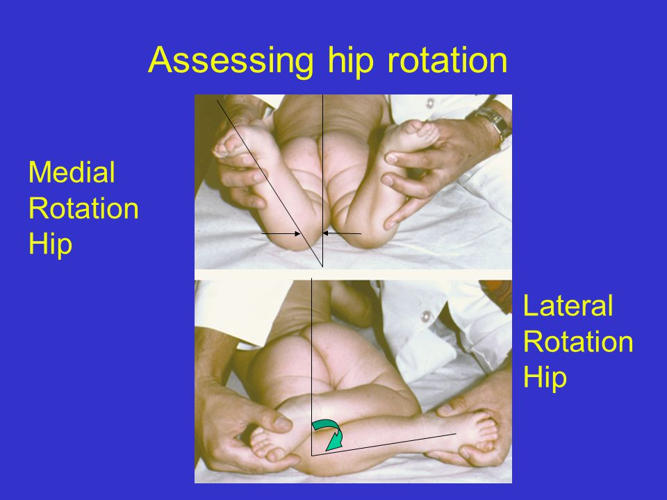Rotational Profile Gait: determine foot progression angles Assess hip rotationAssess hip rotation Assess tibial rotation Where is the source???Determi