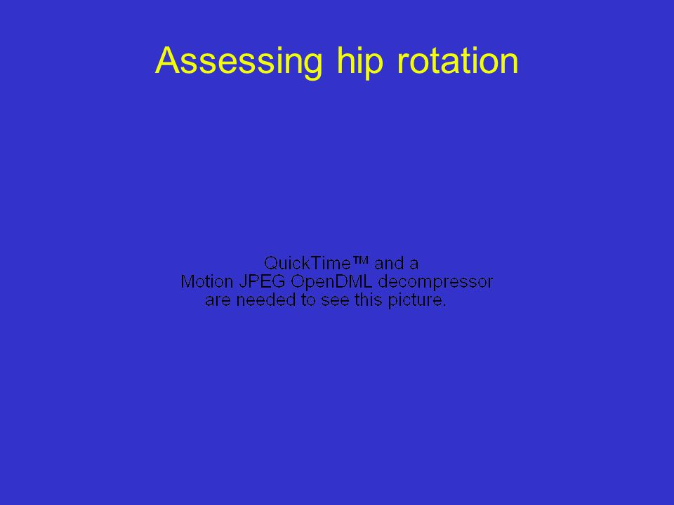 Assessing hip rotation Medial Rotation Hip Lateral Rotation Hip