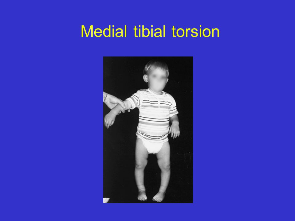 Normals: tibial rotation