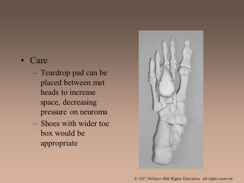 Care –Teardrop pad can be placed between met heads to increase space, decreasing pressure on neuroma –Shoes with wider toe box would be appropriate
