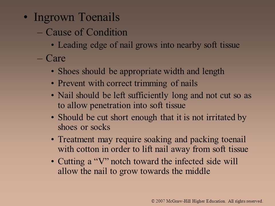 Ingrown Toenails –Cause of Condition Leading edge of nail grows into nearby soft tissue –Care Shoes should be appropriate width and length Prevent wit