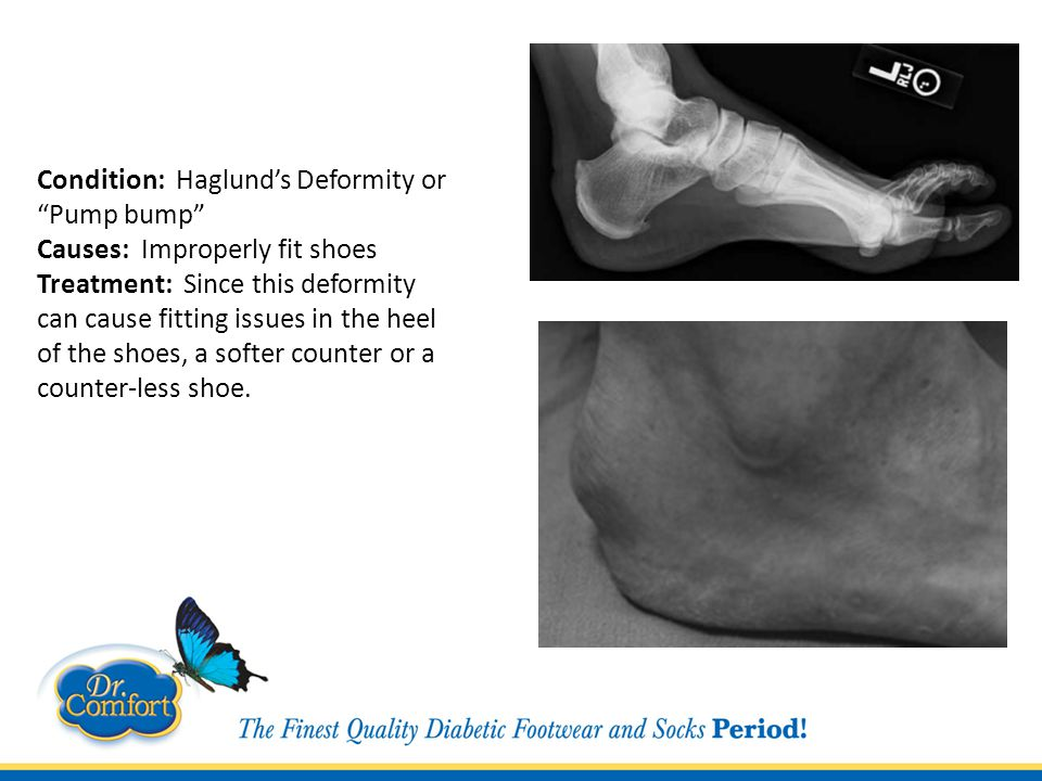 Condition: Haglund's Deformity or Pump bump Causes: Improperly fit shoes Treatment: Since this deformity can cause fitting issues in the heel of the shoes, a softer counter or a counter-less shoe.