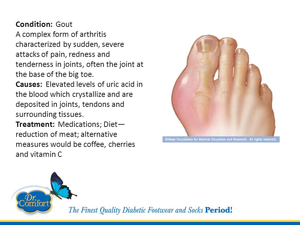 Condition: Gout A complex form of arthritis characterized by sudden, severe attacks of pain, redness and tenderness in joints, often the joint at the base of the big toe.