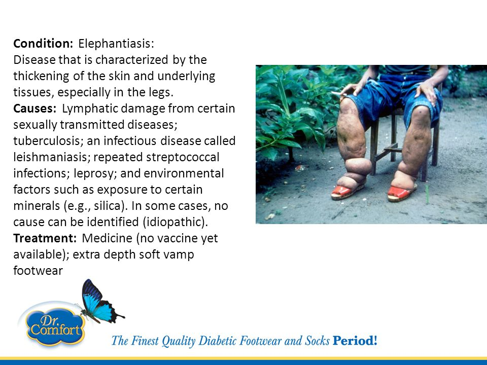 Condition: Elephantiasis: Disease that is characterized by the thickening of the skin and underlying tissues, especially in the legs.
