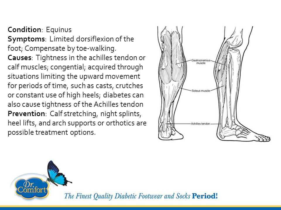 Condition: Tendonitis Symptoms: An inflammation and tearing of a tendon from the bone.
