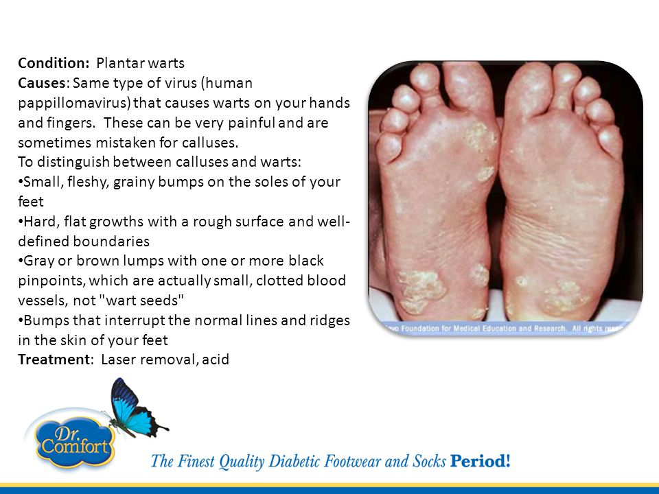 Condition: Plantar warts Causes: Same type of virus (human pappillomavirus) that causes warts on your hands and fingers.
