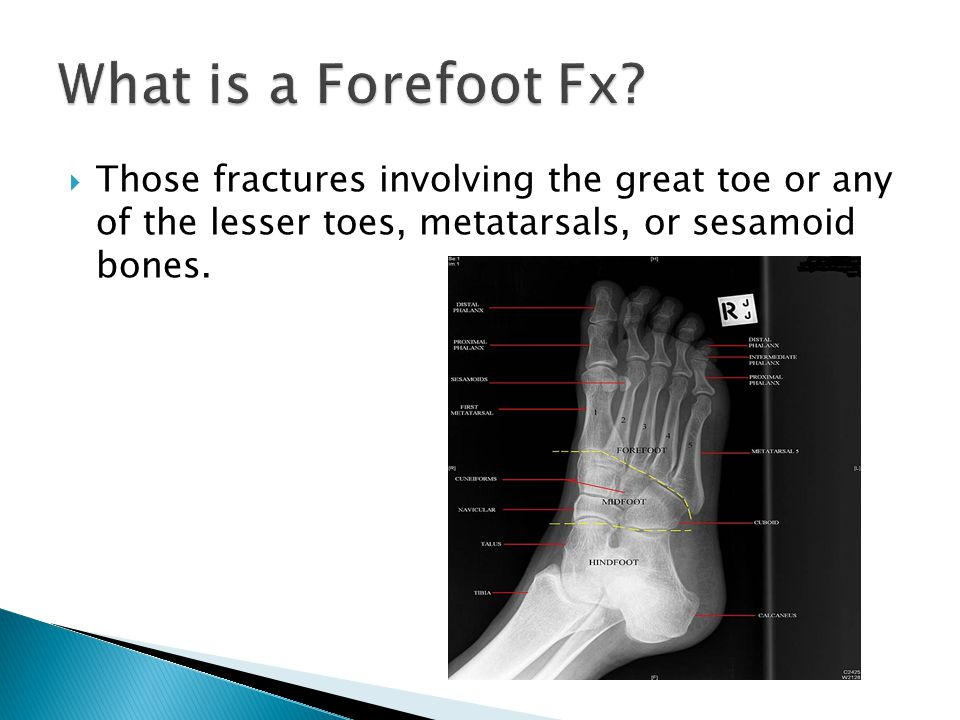 Those fractures involving the great toe or any of the lesser toes, metatarsals, or sesamoid bones.