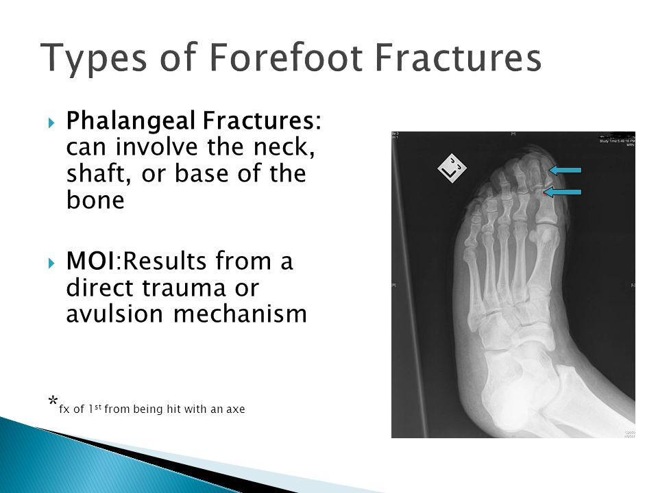  Phalangeal Fractures: can involve the neck, shaft, or base of the bone  MOI:Results from a direct trauma or avulsion mechanism * fx of 1 st from being hit with an axe