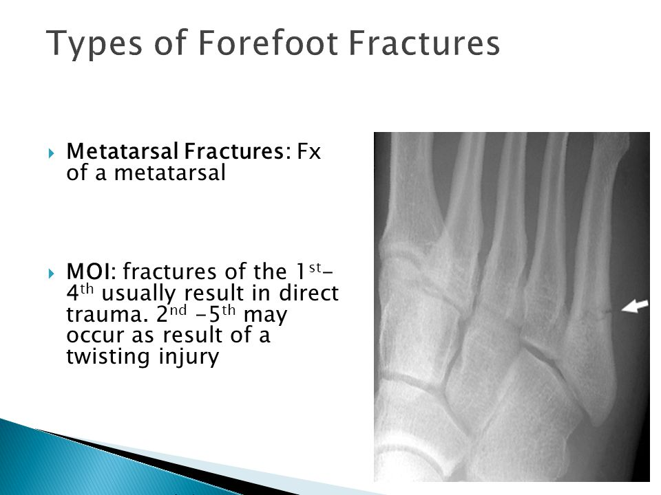  Metatarsal Fractures: Fx of a metatarsal  MOI: fractures of the 1 st - 4 th usually result in direct trauma. 2 nd -5 th may occur as result of a tw