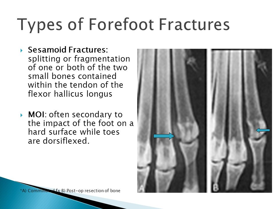  Sesamoid Fractures: splitting or fragmentation of one or both of the two small bones contained within the tendon of the flexor hallicus longus  MOI