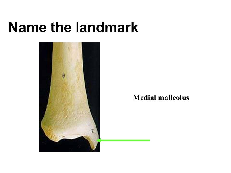Name the landmark Medial malleolus