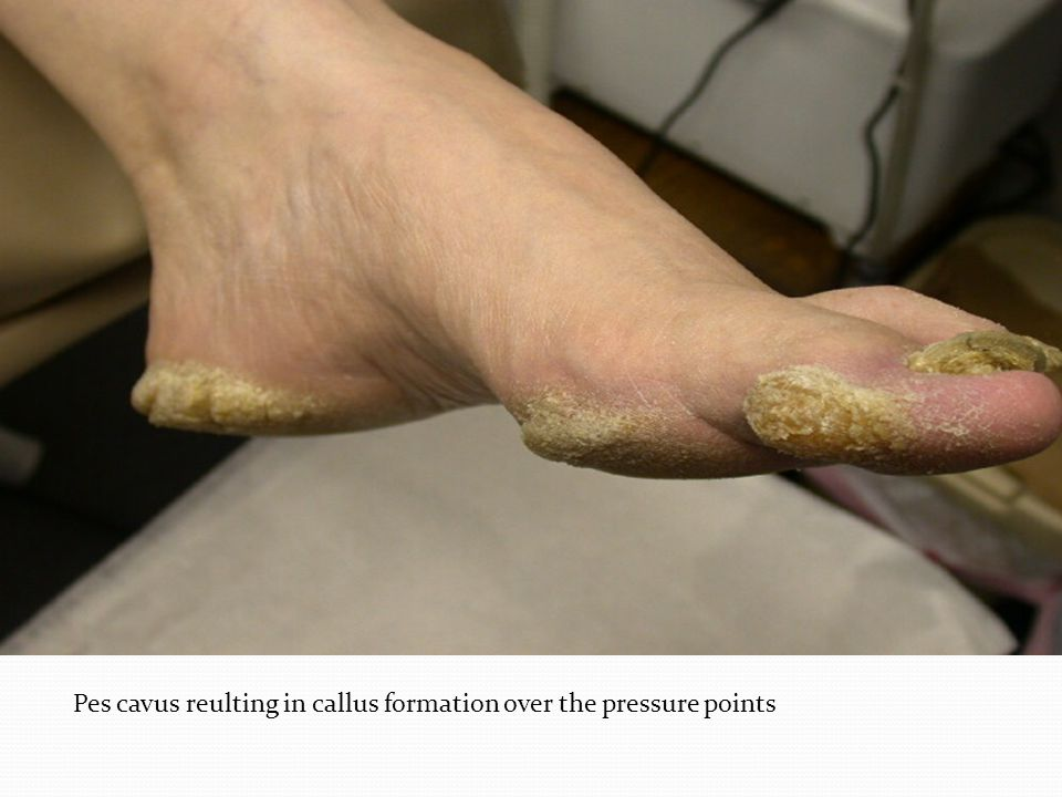 Pes cavus reulting in callus formation over the pressure points