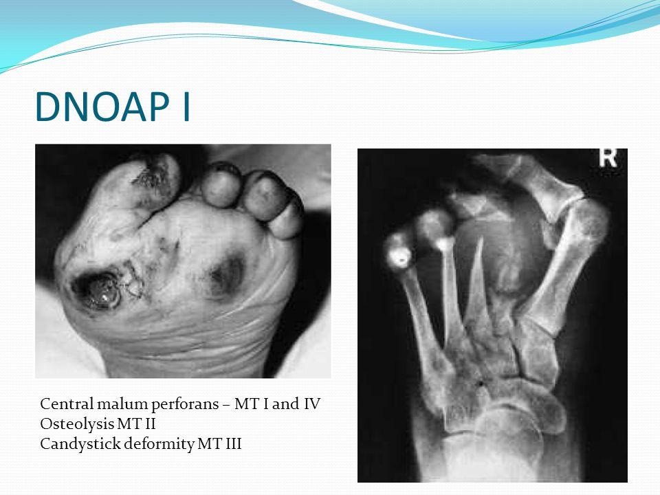 DNOAP I Central malum perforans – MT I and IV Osteolysis MT II Candystick deformity MT III
