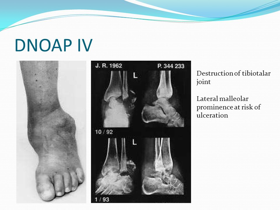 DNOAP IV Destruction of tibiotalar joint Lateral malleolar prominence at risk of ulceration