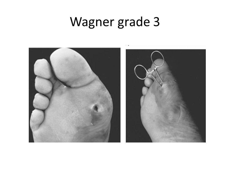 Wagner grade 3