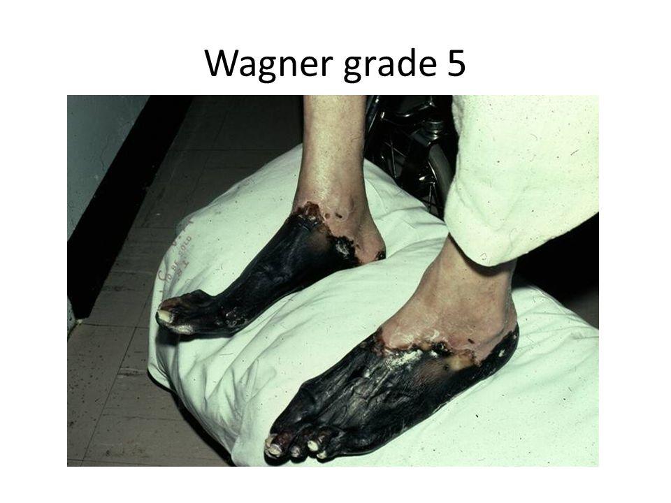 Wagner grade 5