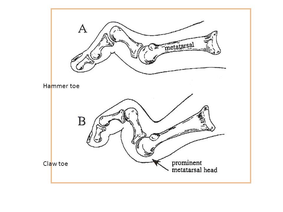 Hammer toe Claw toe