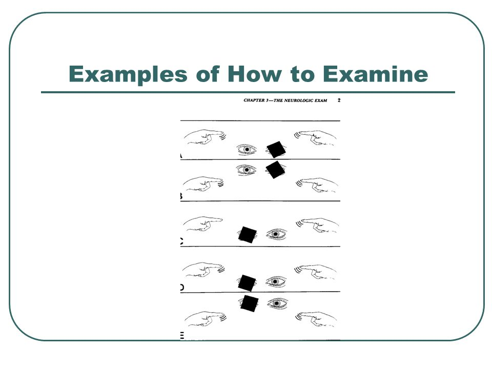 Examples of How to Examine