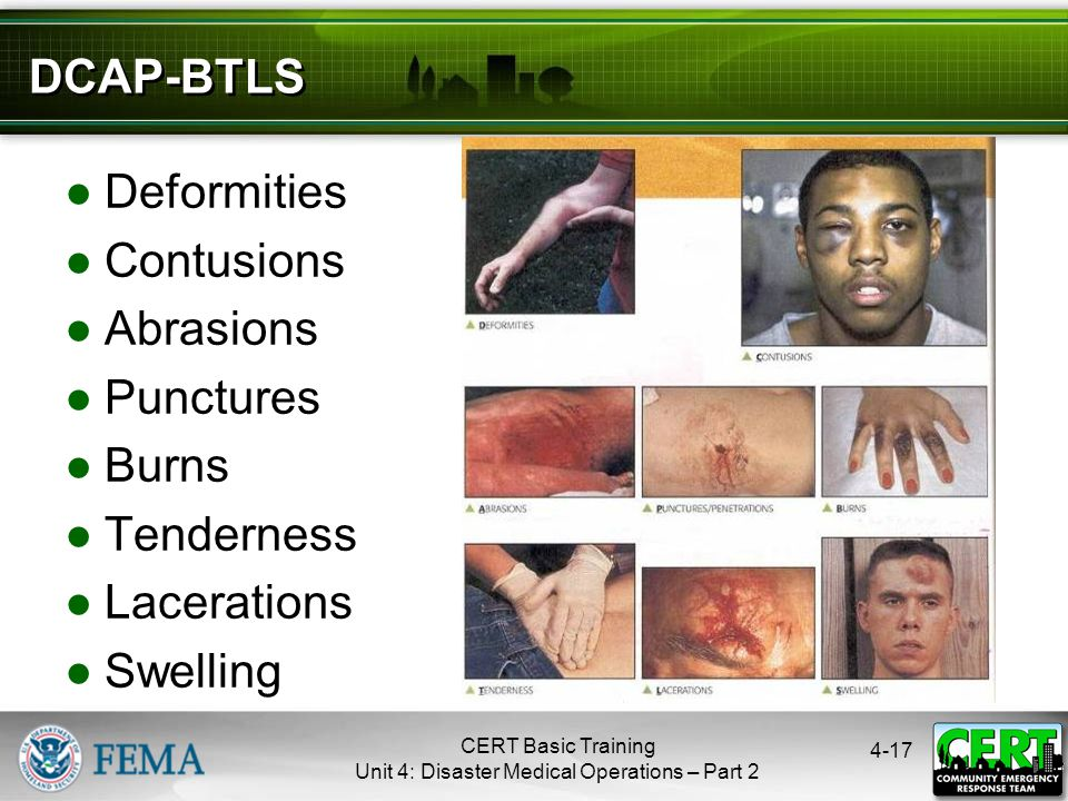 4-17 DCAP-BTLS ●Deformities ●Contusions ●Abrasions ●Punctures ●Burns ●Tenderness ●Lacerations ●Swelling CERT Basic Training Unit 4: Disaster Medical O