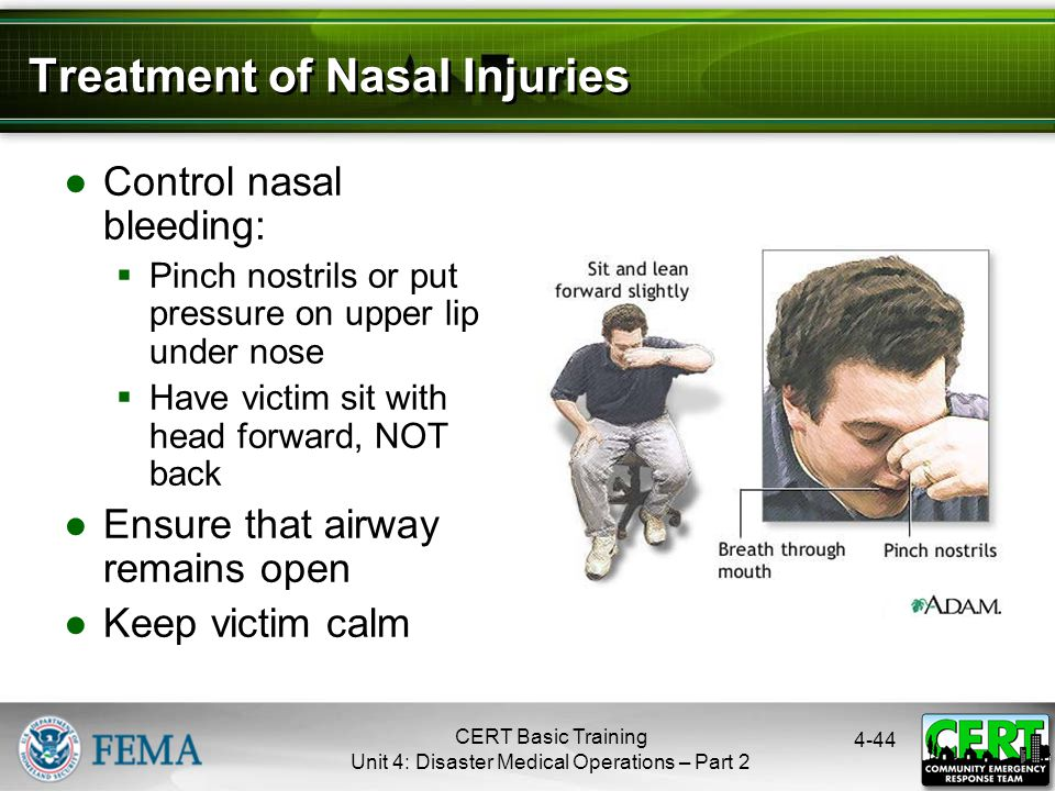 4-44 Treatment of Nasal Injuries ●Control nasal bleeding:  Pinch nostrils or put pressure on upper lip under nose  Have victim sit with head forward