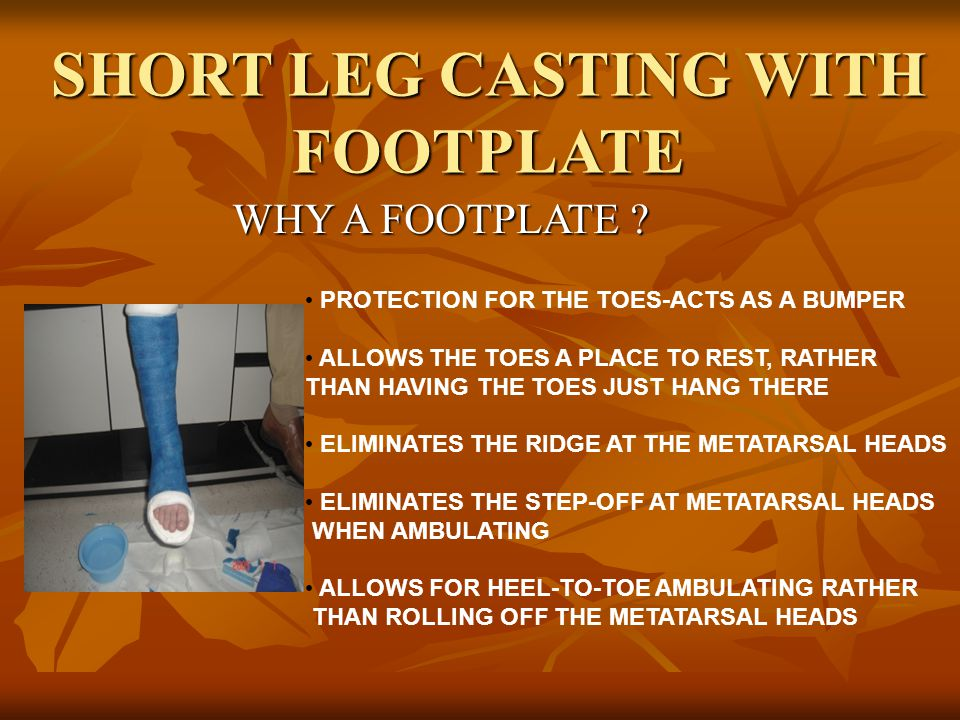 WHY A FOOTPLATE ? SHORT LEG CASTING WITH FOOTPLATE PROTECTION FOR THE TOES-ACTS AS A BUMPER ALLOWS THE TOES A PLACE TO REST, RATHER THAN HAVING THE TO