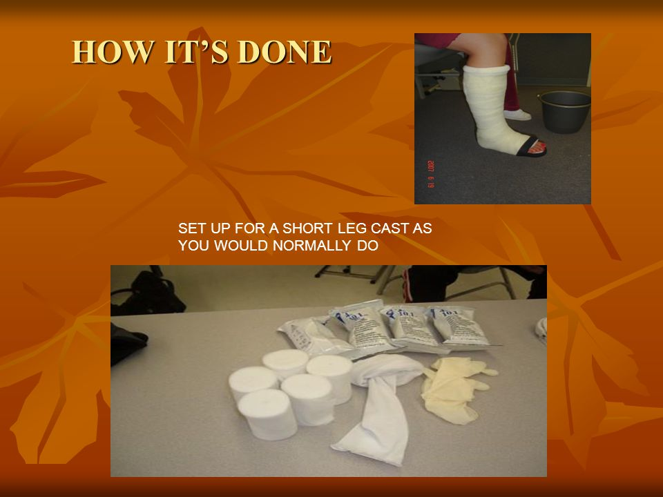 HOW IT'S DONE SET UP FOR A SHORT LEG CAST AS YOU WOULD NORMALLY DO
