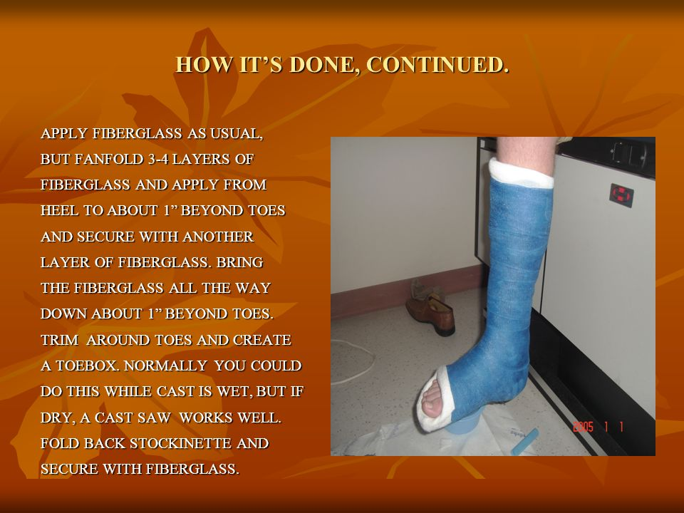 """HOW IT'S DONE, CONTINUED. APPLY FIBERGLASS AS USUAL, BUT FANFOLD 3-4 LAYERS OF FIBERGLASS AND APPLY FROM HEEL TO ABOUT 1"""" BEYOND TOES AND SECURE WITH"""