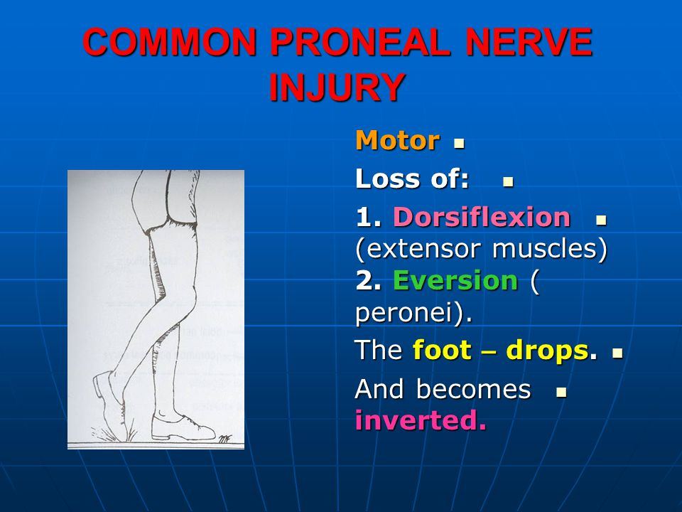 COMMON PRONEAL NERVE INJURY Motor Motor Loss of: Loss of: 1.