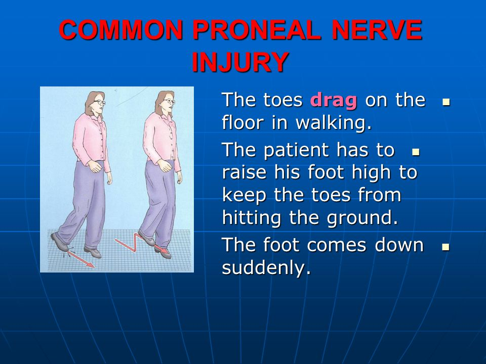 COMMON PRONEAL NERVE INJURY The toes drag on the floor in walking.