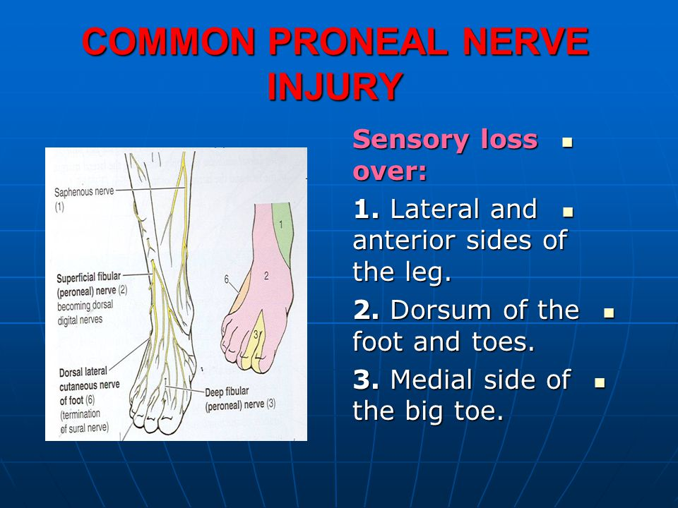 COMMON PRONEAL NERVE INJURY Sensory loss over: Sensory loss over: 1.