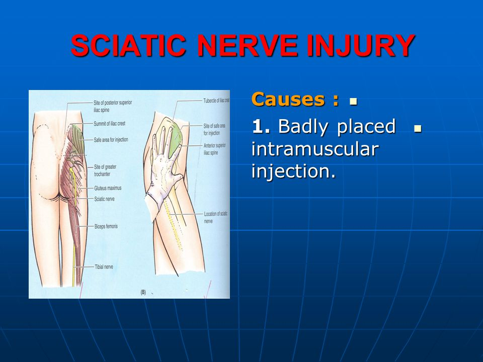 SCIATIC NERVE INJURY Causes : Causes : 1. Badly placed intramuscular injection.