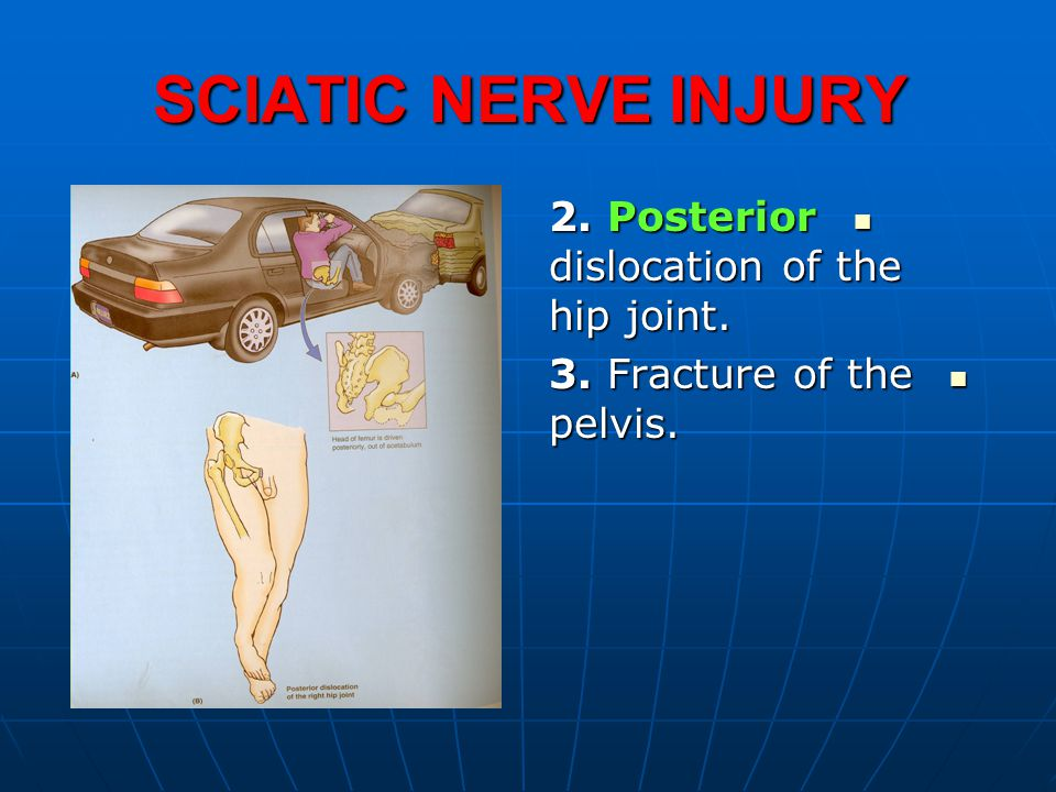 SCIATIC NERVE INJURY 2. Posterior dislocation of the hip joint.