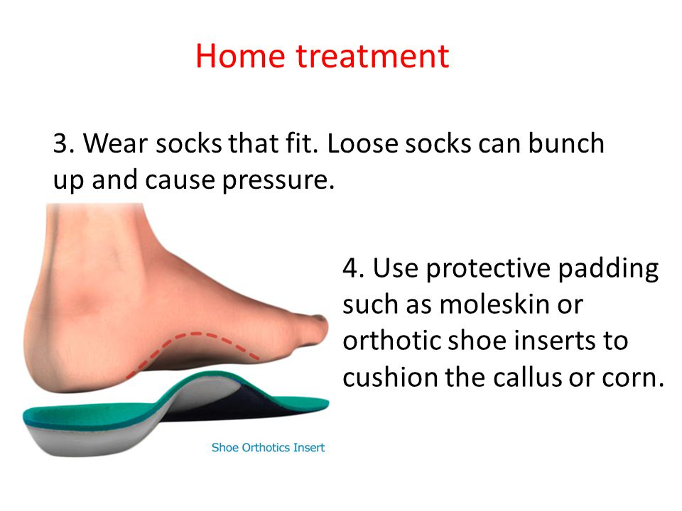 4. Use protective padding such as moleskin or orthotic shoe inserts to cushion the callus or corn. 3. Wear socks that fit. Loose socks can bunch up an
