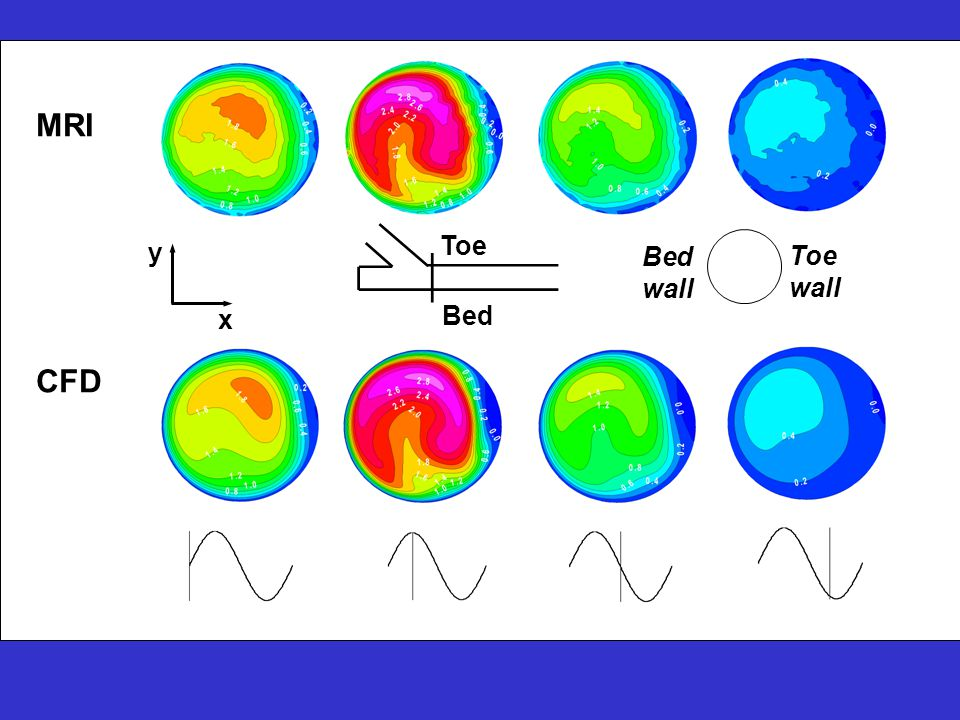 Bed wall Toe wall Bed Toe x y MRI CFD