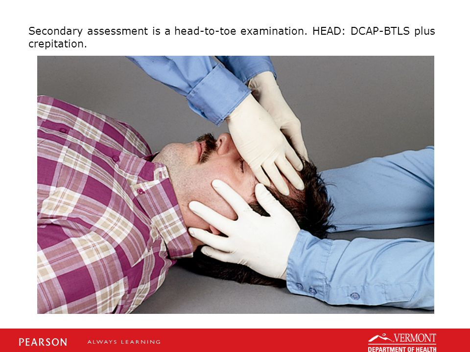 Secondary assessment is a head-to-toe examination. HEAD: DCAP-BTLS plus crepitation.
