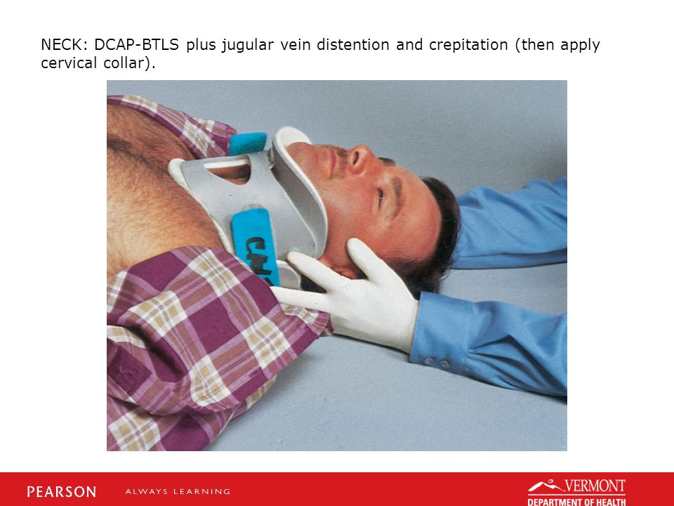 NECK: DCAP-BTLS plus jugular vein distention and crepitation (then apply cervical collar).