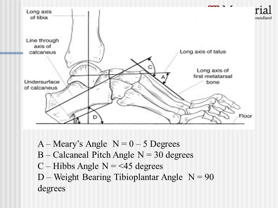 A – Meary's Angle N = 0 – 5 Degrees B – Calcaneal Pitch Angle N = 30 degrees C – Hibbs Angle N = <45 degrees D – Weight Bearing Tibioplantar Angle N =