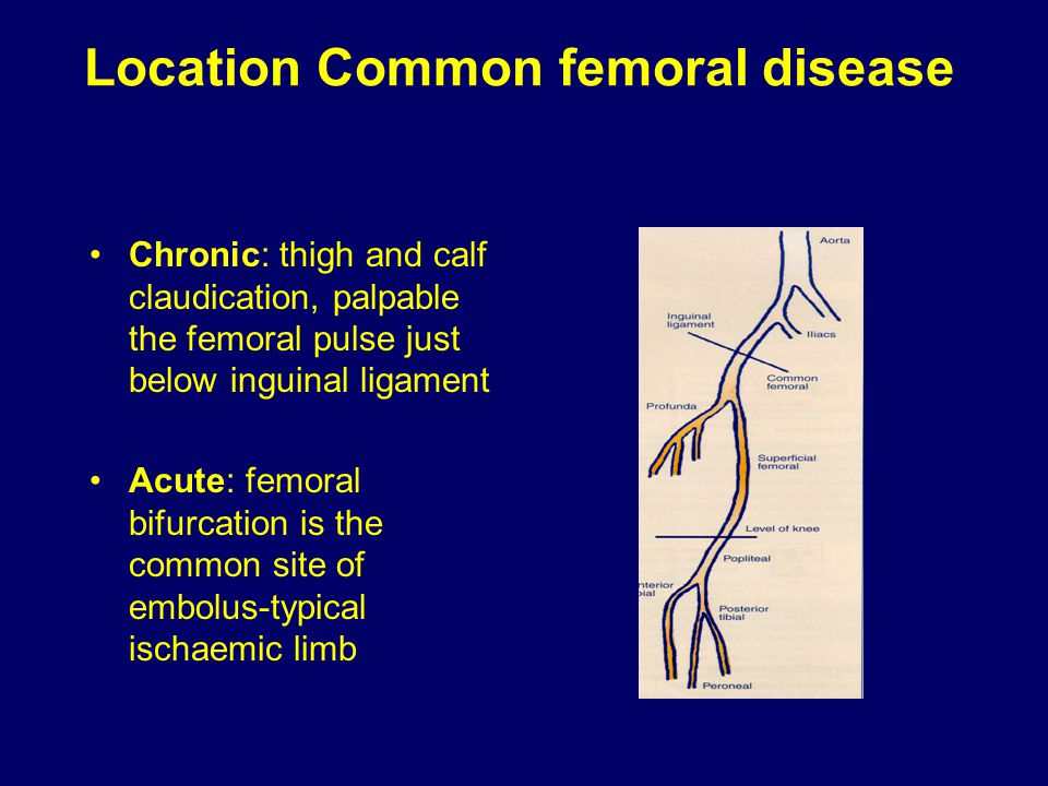 Location Common femoral disease Chronic: thigh and calf claudication, palpable the femoral pulse just below inguinal ligament Acute: femoral bifurcati
