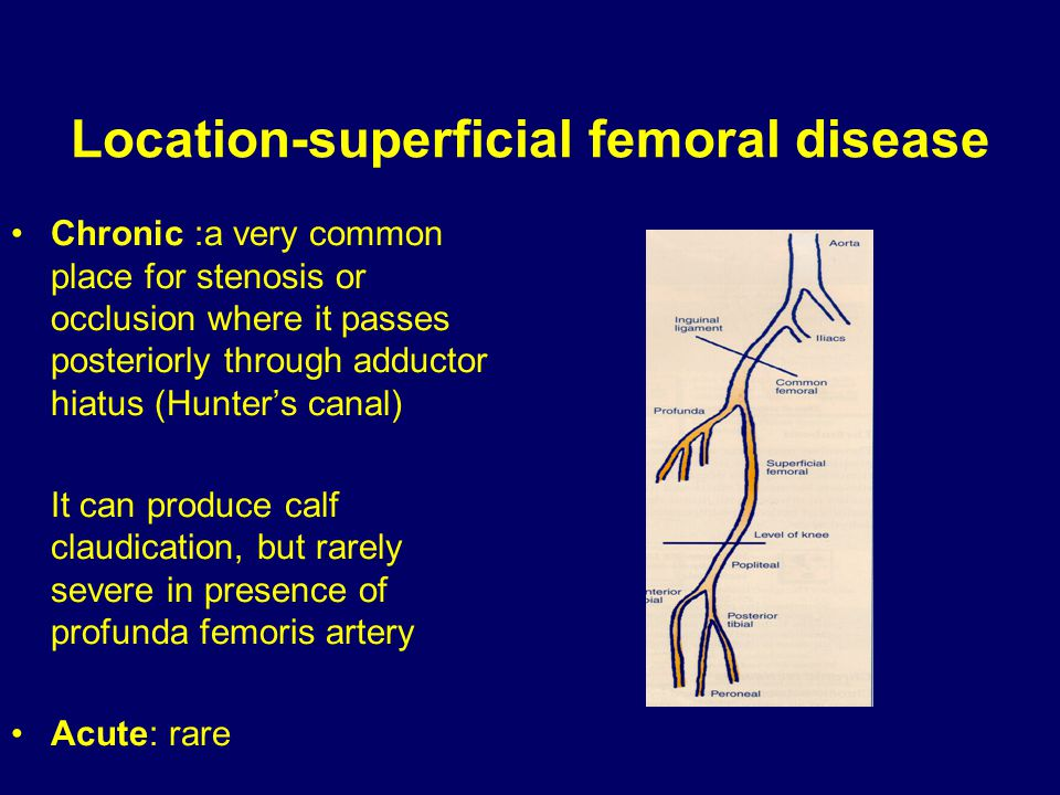 Location-superficial femoral disease Chronic :a very common place for stenosis or occlusion where it passes posteriorly through adductor hiatus (Hunte