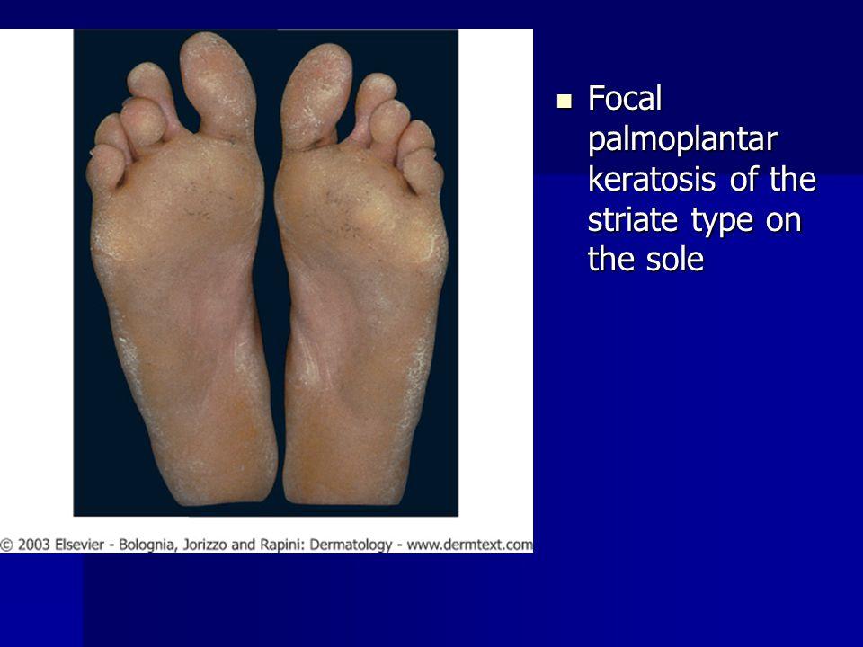 Focal palmoplantar keratosis of the striate type on the sole Focal palmoplantar keratosis of the striate type on the sole