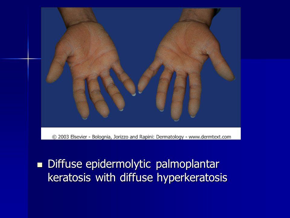 Diffuse epidermolytic palmoplantar keratosis with diffuse hyperkeratosis Diffuse epidermolytic palmoplantar keratosis with diffuse hyperkeratosis