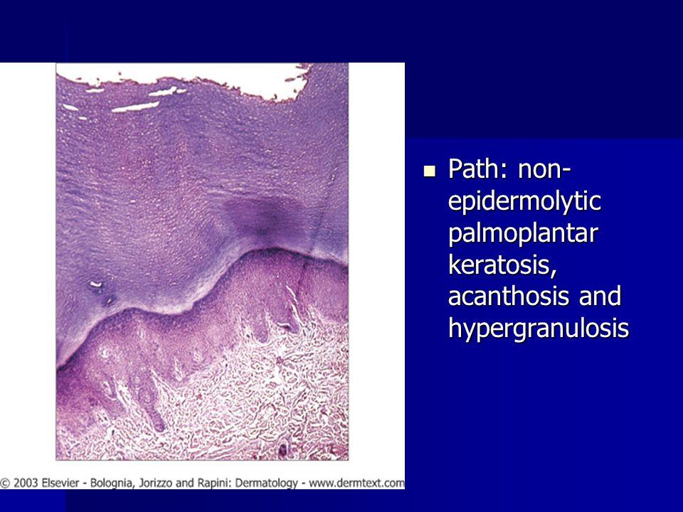 Path: non- epidermolytic palmoplantar keratosis, acanthosis and hypergranulosis Path: non- epidermolytic palmoplantar keratosis, acanthosis and hyperg