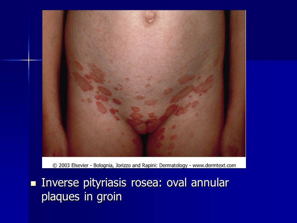 Inverse pityriasis rosea: oval annular plaques in groin Inverse pityriasis rosea: oval annular plaques in groin