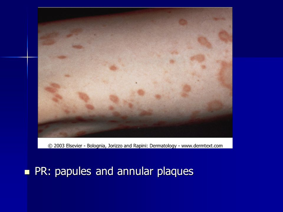 PR: papules and annular plaques PR: papules and annular plaques