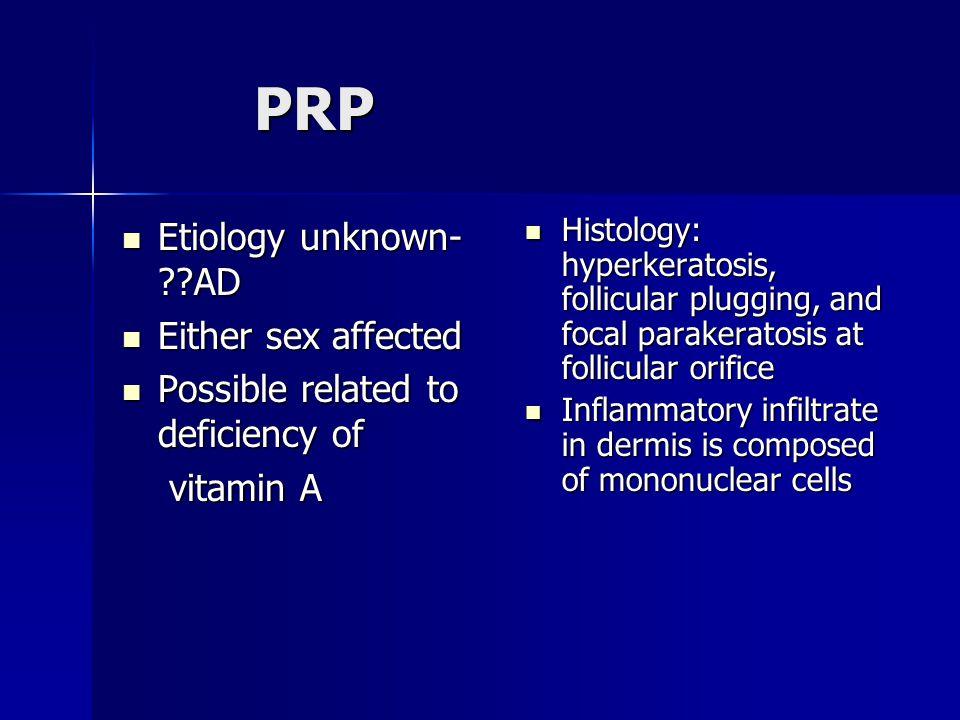 PRP Etiology unknown- ??AD Etiology unknown- ??AD Either sex affected Either sex affected Possible related to deficiency of Possible related to defici